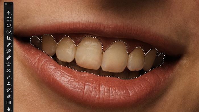 Amélioration contour des dents