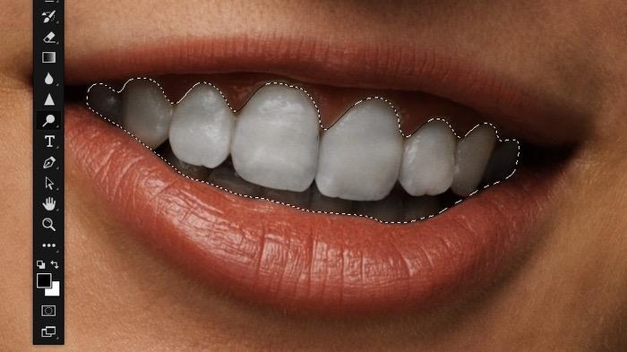Densité des dents