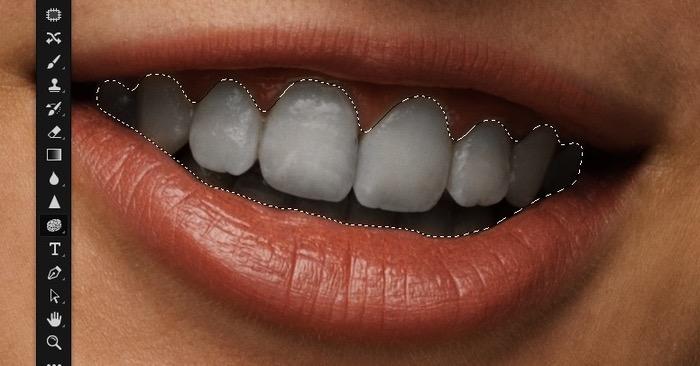 Dents désaturées