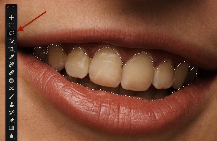 Lasso dents